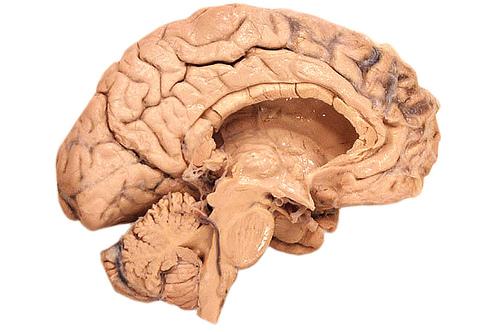Pneumonia in Traumatic Brain Injury Patients