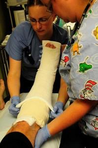 broken bone injuries