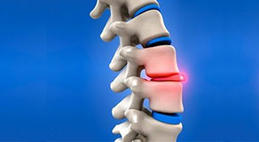 Herniated and Bulging Disc Injuries