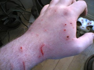 Human hand with cat bite injuries