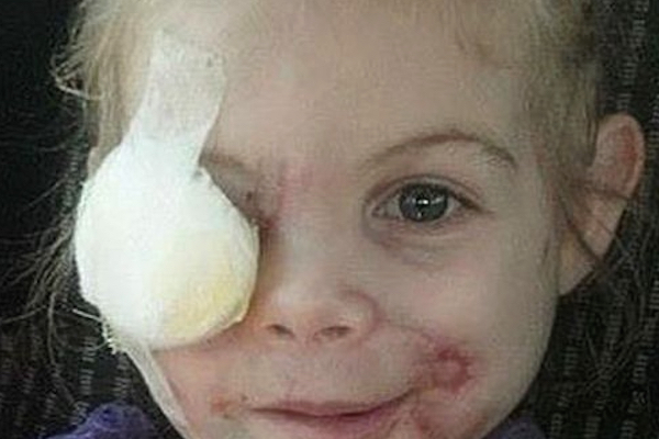 KFC Mauled Girl Hoax Graphic
